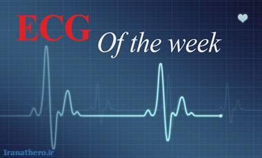 ECG of the week 112