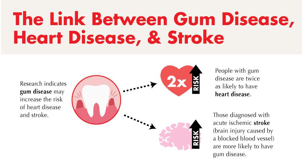 Gum diseases and the  connection to heart disease